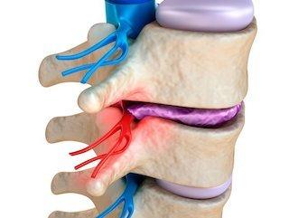 Vertebral Subluxation Treatement Greenville Spine Institute